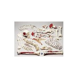 Denoyer-Geppert - S73LC - Denoyer Premier Muscular Disarticulated Skeleton Denoyer Premier Muscular Disarticulated Skeleton (Each)