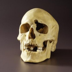 Bone Clones - Bc-152 - Skull With Gunshot Wound Plastic. (each)