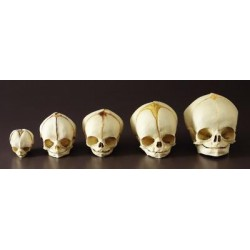 Bone Clones - Bc-194-set - Model Fetal Human Skulls Set/5. (kit Of 1)