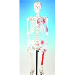 Eisco Scientific - AMCH1003AS - Eisco Labs Skeleton, Full Size Human, Painted, Rod Mount