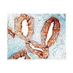 Diagnostic Biosystems - MOB 085-05 - PSAP - CLONE PASE/4LJ .5ML (Each)