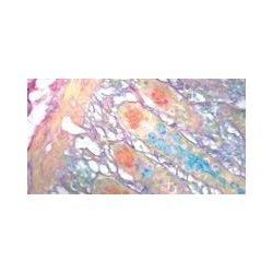 Diagnostic Biosystems - KT 007 - COLLOIDAL IRON KIT 100RXN (Each)